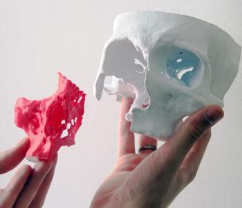 cranio-3d-impressao-3d-em-curitiba